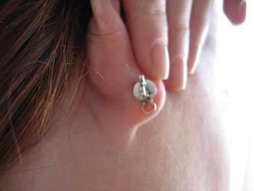 droopy earlobe fix