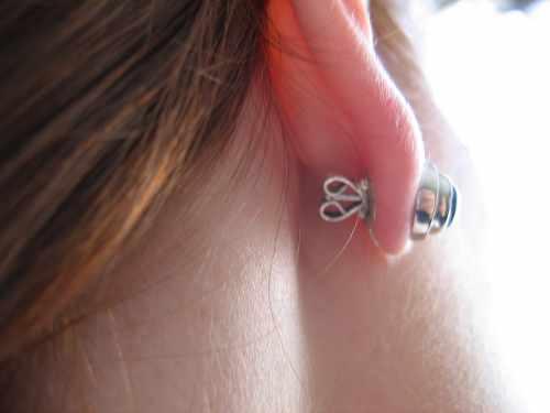 droopy earlobe fixed